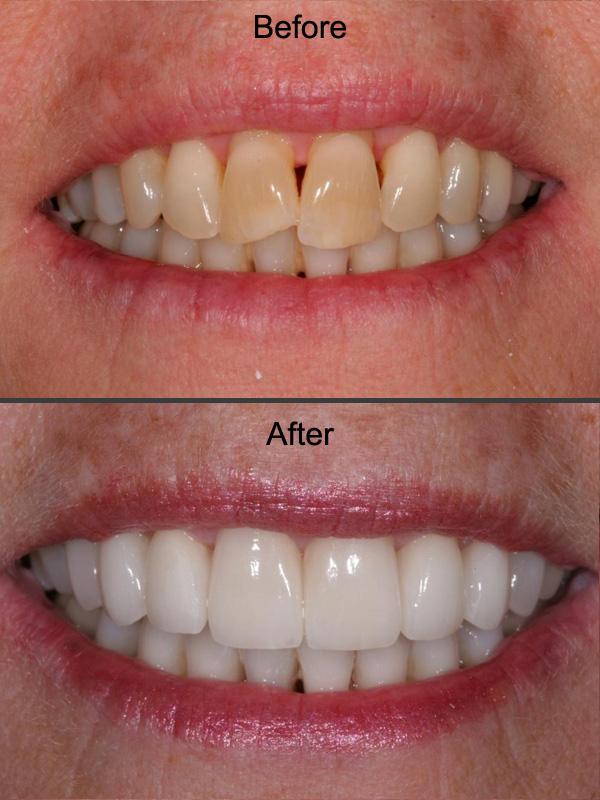 restorative-dentistry-wilmington-nc-french-family.jpg
